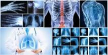 L'imagerie médicale de plus en plus pointue grâce au digital