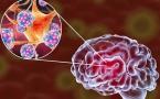 Étude britannique : Le Covid-19 provoquerait une atrophie de la matière grise du cerveau