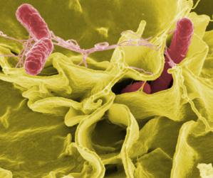 Prévention de la salmonellose