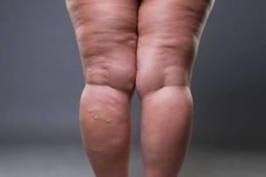 Le lipœdème, ce n'est pas l'obésité