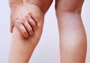 Jambes lourdes : quels nutriments privilégier ?