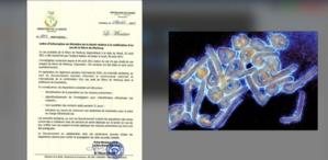 Virus Marburg : quelle est cette maladie qui vient d'être détectée  ?