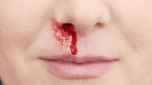 Saignement du nez : Attention à la chaleur et à l'air conditionné