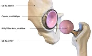 Le remplacement total de la hanche se fait en ambulatoire dans les pays du Maghreb