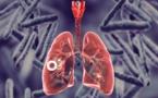 Journée mondiale de lutte contre la tuberculose  sous le thème « Le temps presse »