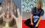 Le rappeur Dan Sur se plante des chaînes en or en guise de cheveux