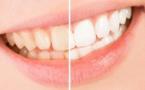 Comment blanchir ses dents sans les abîmer ?