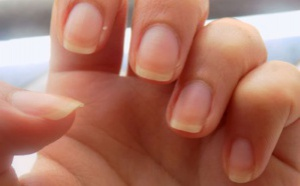 Jaunissement des ongles : Causes et remèdes