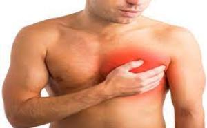 Cancer du sein chez l'homme, seul traitement la chirurgie