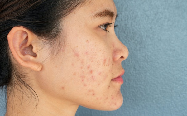 Un remède naturel pour atténuer les cicatrices de l'acné
